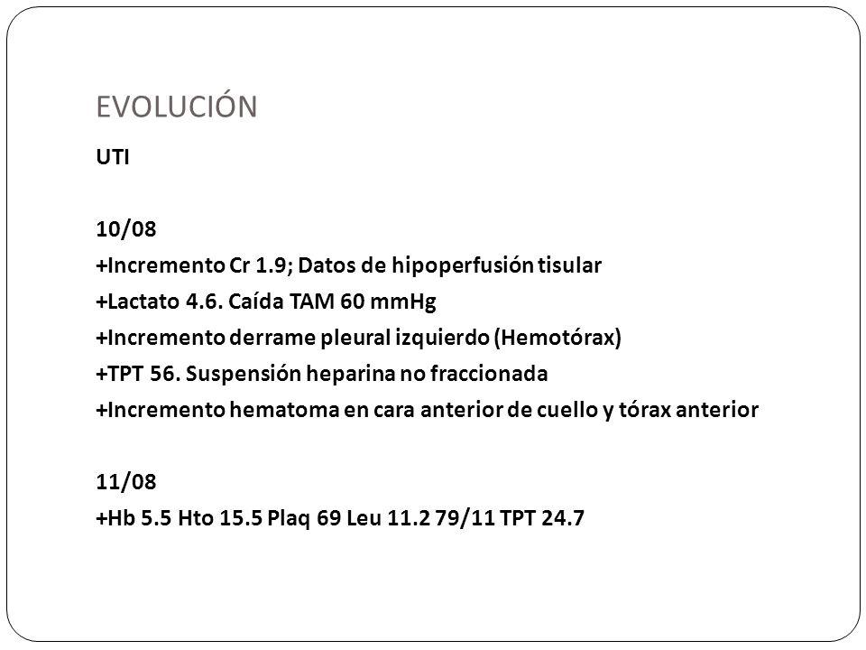 EVOLUCIÓN UTI 10/08 +Incremento Cr 1.9; Datos de hipoperfusión tisular +Lactato 4.6. Caída TAM 60 mmHg +Incremento derrame pleural izquierdo (Hemotóra