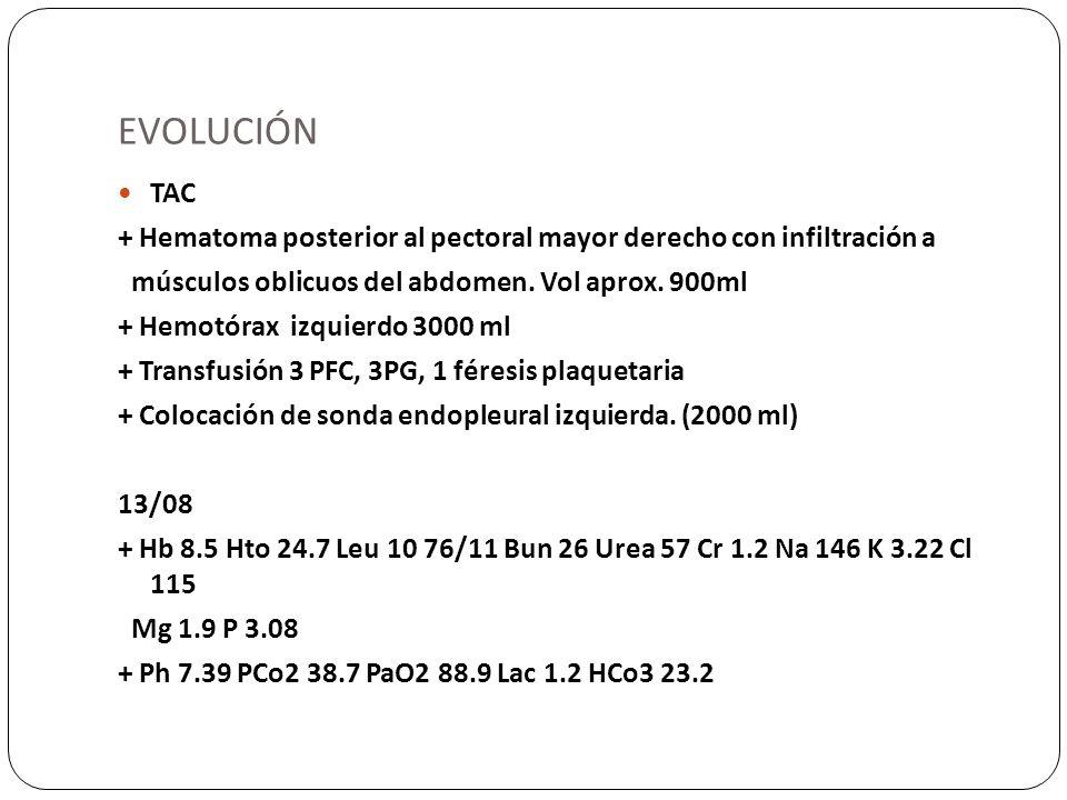 EVOLUCIÓN TAC + Hematoma posterior al pectoral mayor derecho con infiltración a músculos oblicuos del abdomen. Vol aprox. 900ml + Hemotórax izquierdo