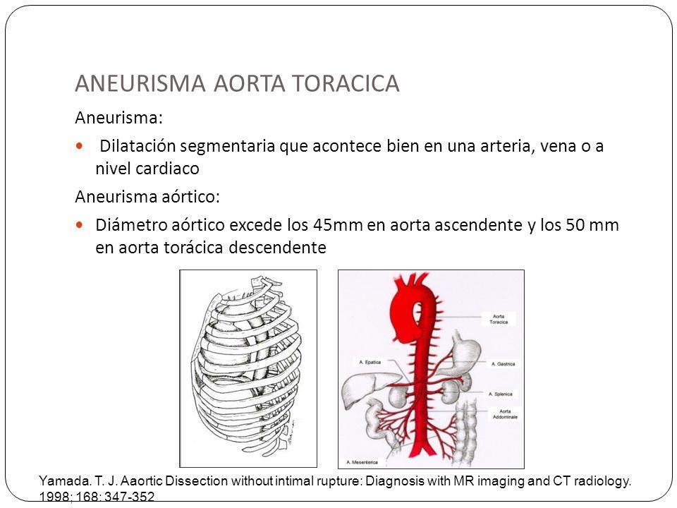 ANEURISMA AORTA TORACICA Aneurisma: Dilatación segmentaria que acontece bien en una arteria, vena o a nivel cardiaco Aneurisma aórtico: Diámetro aórti