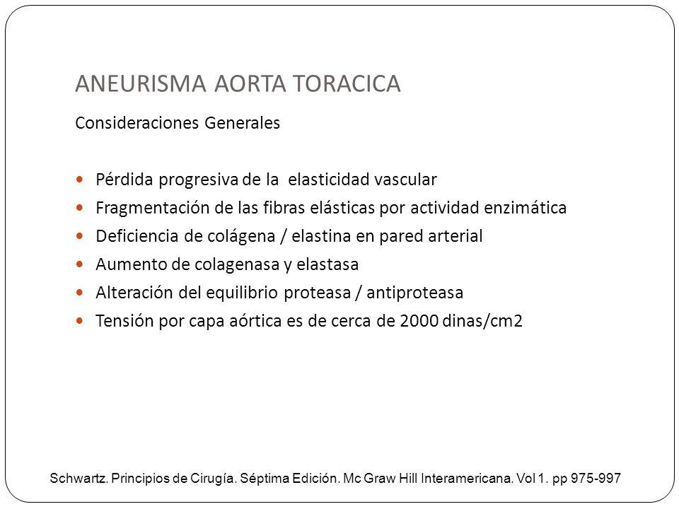 ANEURISMA AORTA TORACICA Consideraciones Generales Pérdida progresiva de la elasticidad vascular Fragmentación de las fibras elásticas por actividad e