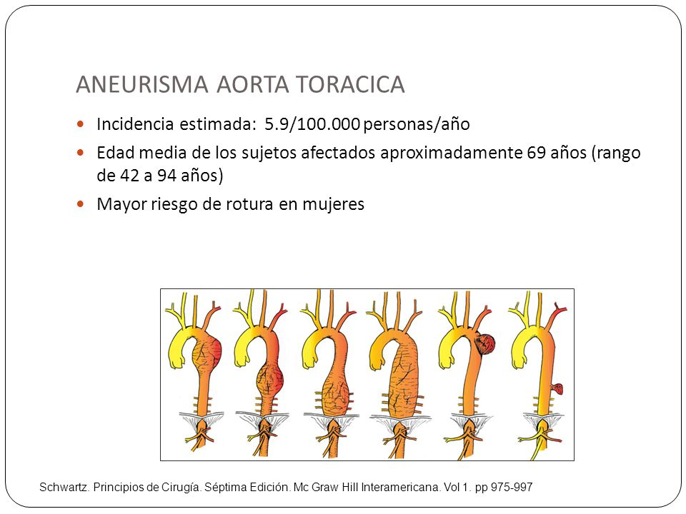 ANEURISMA AORTA TORACICA Incidencia estimada: 5.9/100.000 personas/año Edad media de los sujetos afectados aproximadamente 69 años (rango de 42 a 94 a