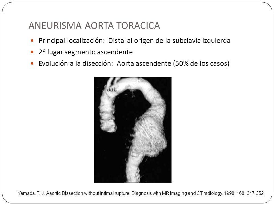 ANEURISMA AORTA TORACICA Principal localización: Distal al origen de la subclavia izquierda 2º lugar segmento ascendente Evolución a la disección: Aor