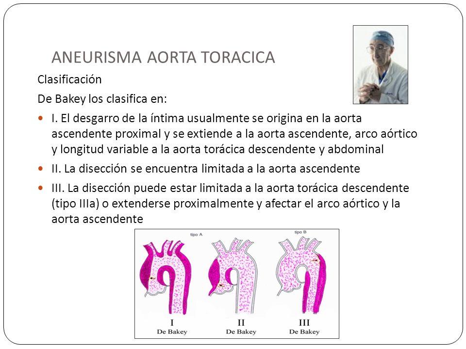 ANEURISMA AORTA TORACICA Clasificación De Bakey los clasifica en: I. El desgarro de la íntima usualmente se origina en la aorta ascendente proximal y