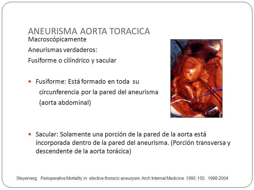 ANEURISMA AORTA TORACICA Macroscópicamente Aneurismas verdaderos: Fusiforme o cilíndrico y sacular Fusiforme: Está formado en toda su circunferencia p