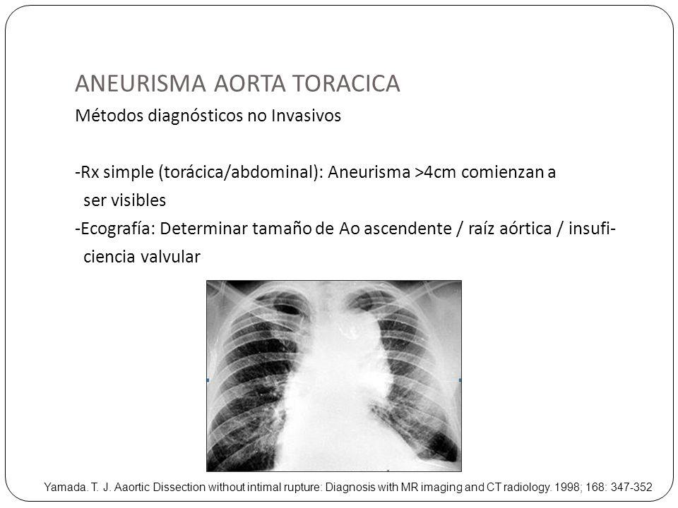 ANEURISMA AORTA TORACICA Métodos diagnósticos no Invasivos -Rx simple (torácica/abdominal): Aneurisma >4cm comienzan a ser visibles -Ecografía: Determ