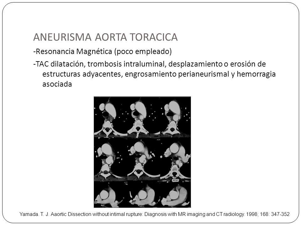 ANEURISMA AORTA TORACICA -Resonancia Magnética (poco empleado) -TAC dilatación, trombosis intraluminal, desplazamiento o erosión de estructuras adyace