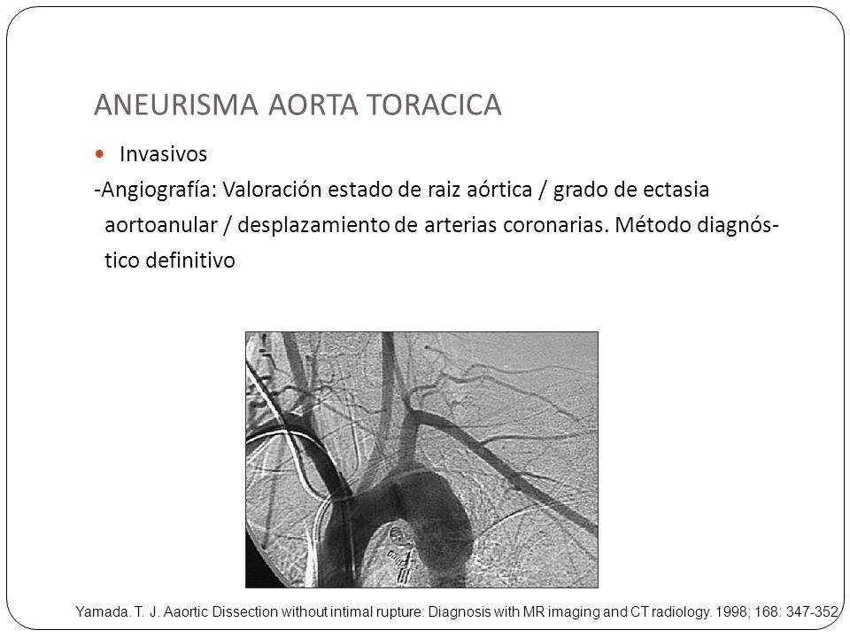 ANEURISMA AORTA TORACICA Invasivos -Angiografía: Valoración estado de raiz aórtica / grado de ectasia aortoanular / desplazamiento de arterias coronar