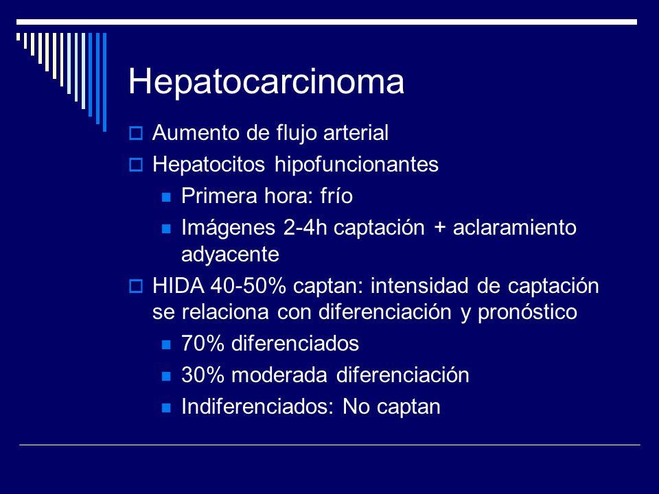 Hepatocarcinoma Aumento de flujo arterial Hepatocitos hipofuncionantes Primera hora: frío Imágenes 2-4h captación + aclaramiento adyacente HIDA 40-50%
