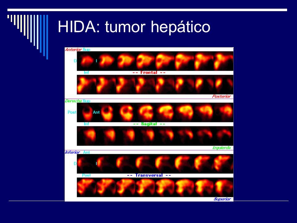 HIDA: tumor hepático