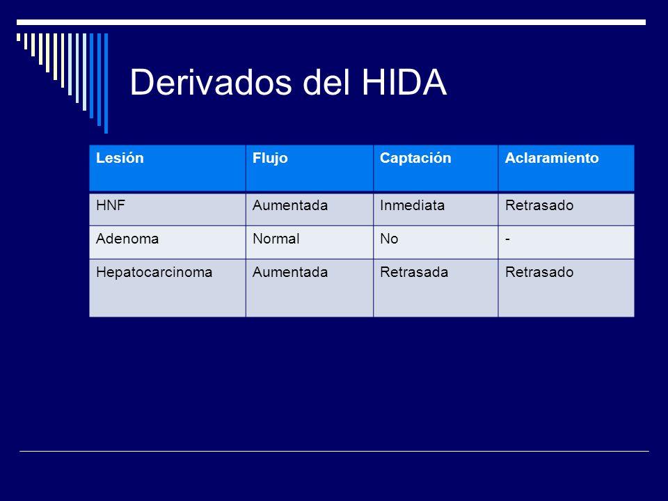 Derivados del HIDA LesiónFlujoCaptaciónAclaramiento HNFAumentadaInmediataRetrasado AdenomaNormalNo- HepatocarcinomaAumentadaRetrasadaRetrasado