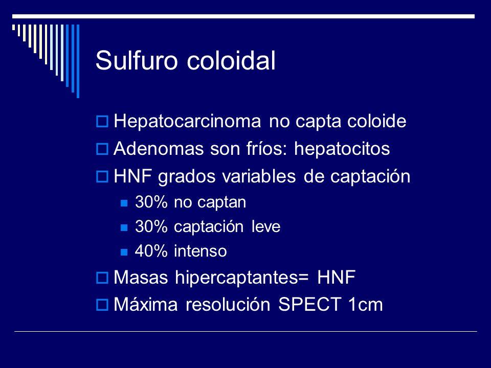 Sulfuro coloidal Hepatocarcinoma no capta coloide Adenomas son fríos: hepatocitos HNF grados variables de captación 30% no captan 30% captación leve 4