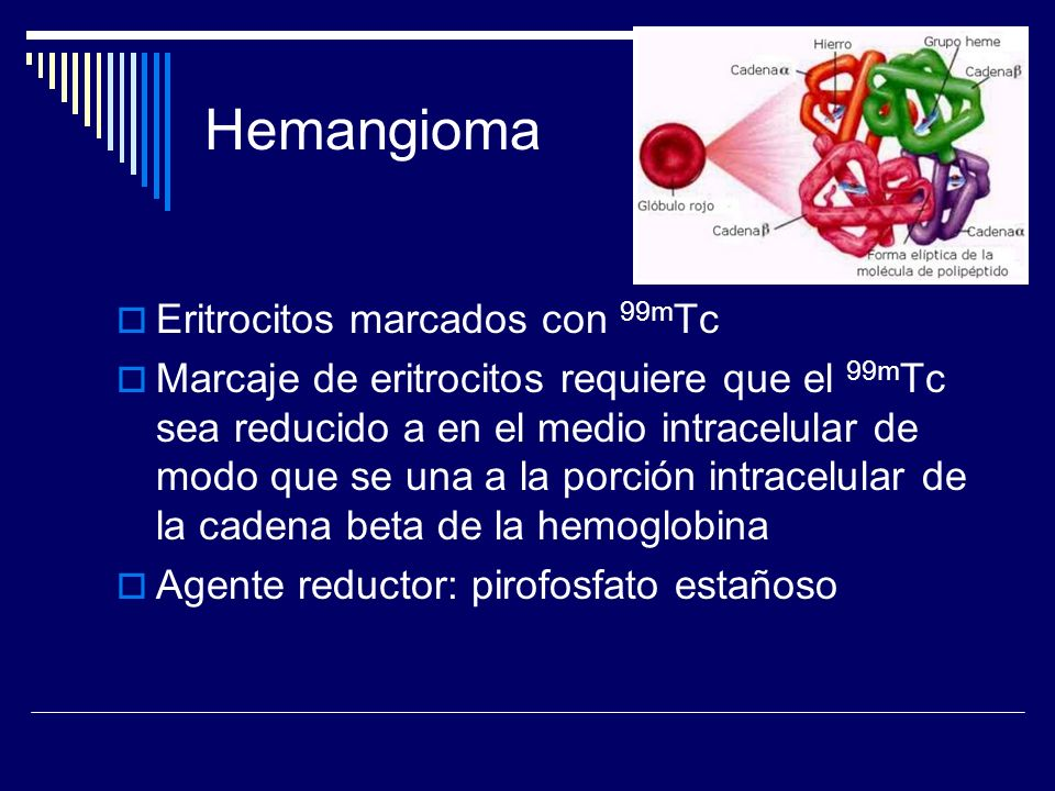 Hemangioma Eritrocitos marcados con 99m Tc Marcaje de eritrocitos requiere que el 99m Tc sea reducido a en el medio intracelular de modo que se una a
