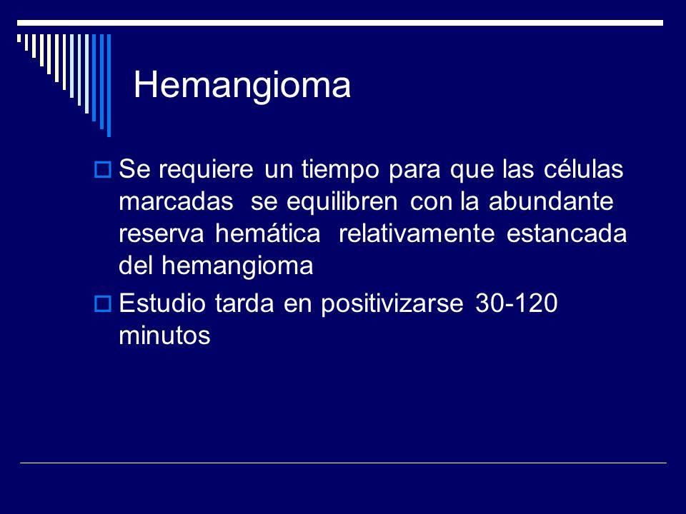 Hemangioma Se requiere un tiempo para que las células marcadas se equilibren con la abundante reserva hemática relativamente estancada del hemangioma