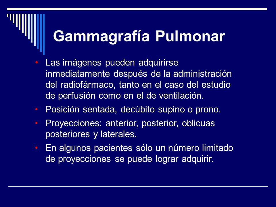 Gammagrafía Pulmonar Las imágenes pueden adquirirse inmediatamente después de la administración del radiofármaco, tanto en el caso del estudio de perf