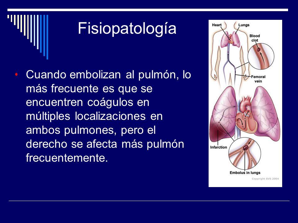 Cuando embolizan al pulmón, lo más frecuente es que se encuentren coágulos en múltiples localizaciones en ambos pulmones, pero el derecho se afecta má