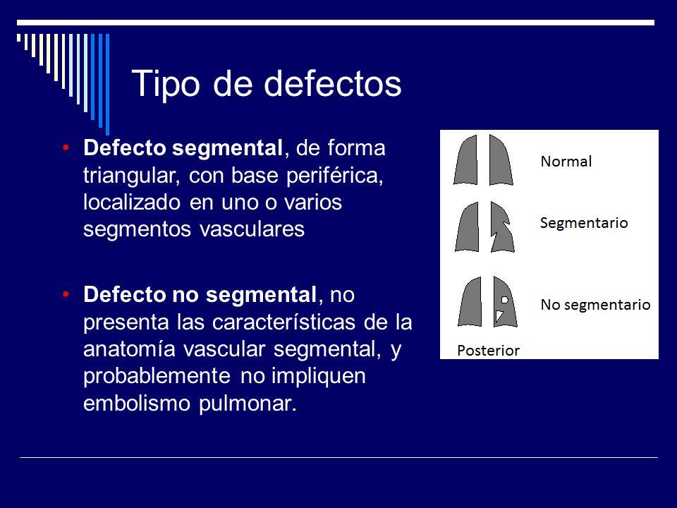 Defecto segmental, de forma triangular, con base periférica, localizado en uno o varios segmentos vasculares Defecto no segmental, no presenta las car