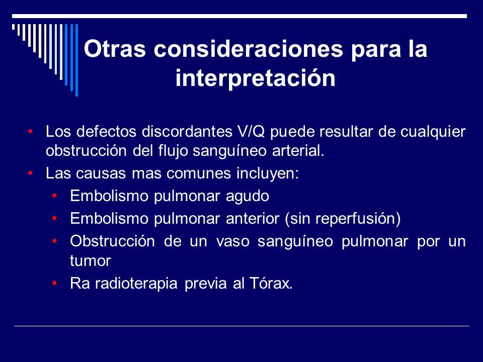 Otras consideraciones para la interpretación Los defectos discordantes V/Q puede resultar de cualquier obstrucción del flujo sanguíneo arterial. Las c