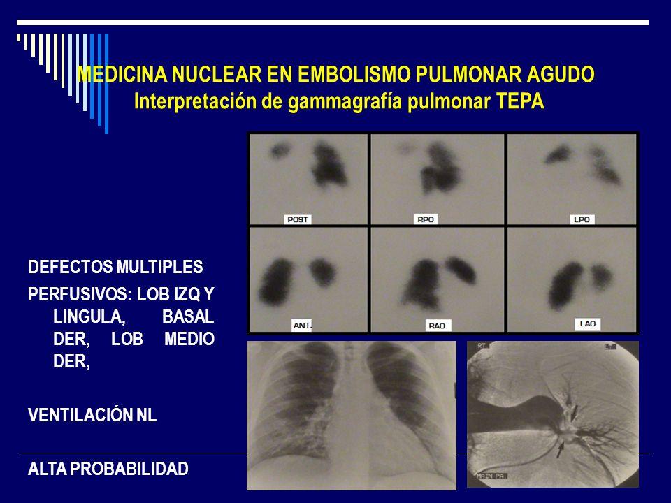 MEDICINA NUCLEAR EN EMBOLISMO PULMONAR AGUDO Interpretación de gammagrafía pulmonar TEPA DEFECTOS MULTIPLES PERFUSIVOS: LOB IZQ Y LINGULA, BASAL DER,