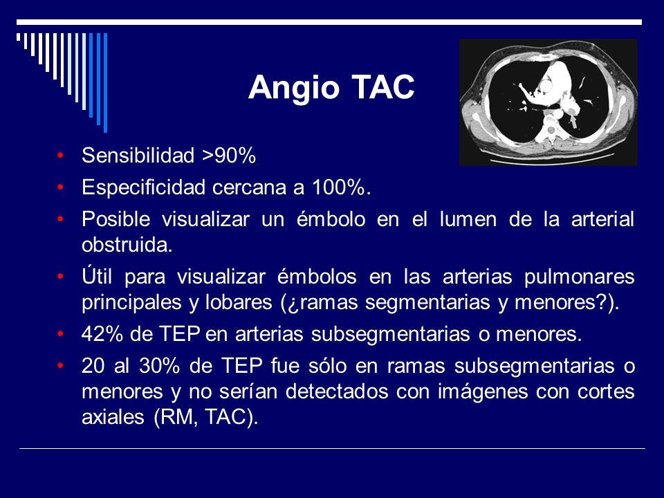 Angio TAC Sensibilidad >90% Especificidad cercana a 100%. Posible visualizar un émbolo en el lumen de la arterial obstruida. Útil para visualizar émbo