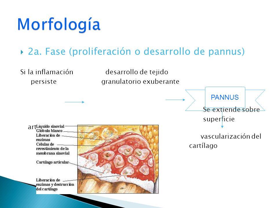 2a. Fase (proliferación o desarrollo de pannus) Si la inflamación desarrollo de tejido persiste granulatorio exuberante Se extiende sobre superficie a