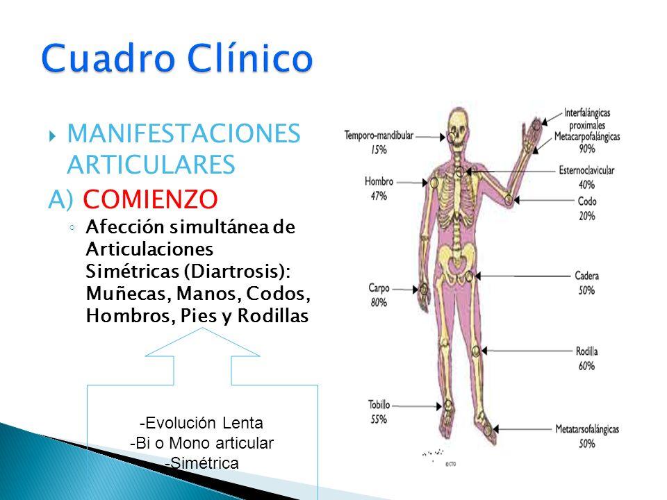 MANIFESTACIONES ARTICULARES A) COMIENZO Afección simultánea de Articulaciones Simétricas (Diartrosis): Muñecas, Manos, Codos, Hombros, Pies y Rodillas