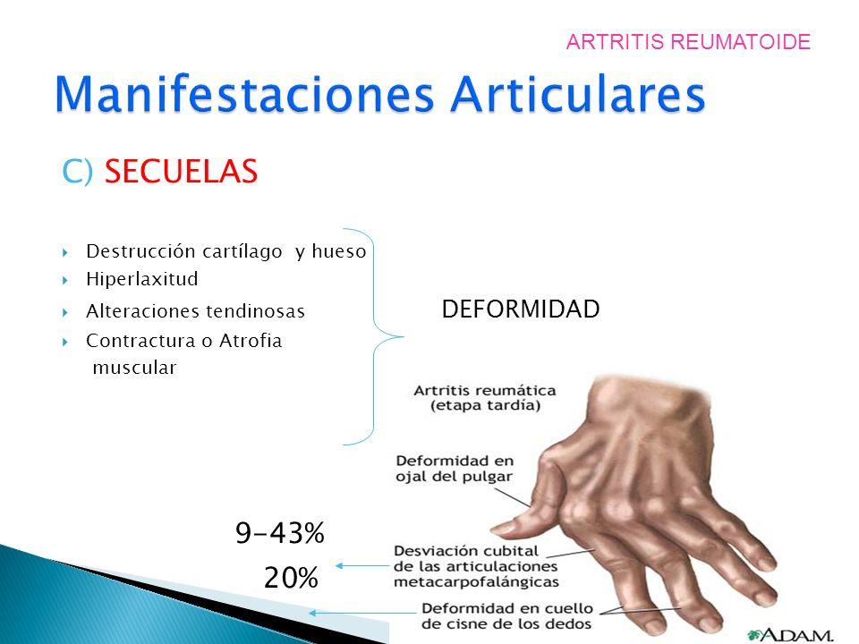 C) SECUELAS Destrucción cartílago y hueso Hiperlaxitud Alteraciones tendinosas DEFORMIDAD Contractura o Atrofia muscular 9-43% 20% ARTRITIS REUMATOIDE