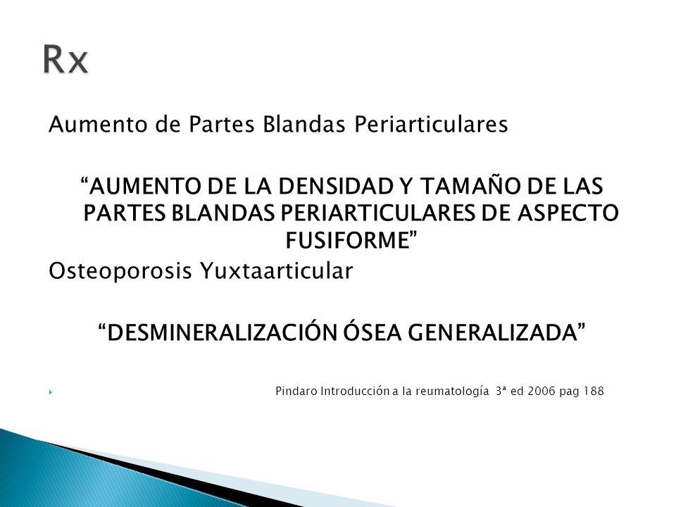 Aumento de Partes Blandas Periarticulares AUMENTO DE LA DENSIDAD Y TAMAÑO DE LAS PARTES BLANDAS PERIARTICULARES DE ASPECTO FUSIFORME Osteoporosis Yuxt