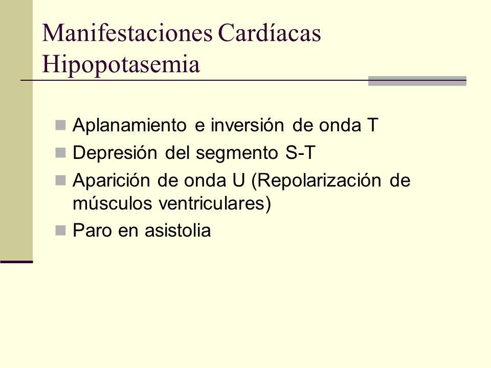 Manifestaciones Cardíacas Hipopotasemia Aplanamiento e inversión de onda T Depresión del segmento S-T Aparición de onda U (Repolarización de músculos