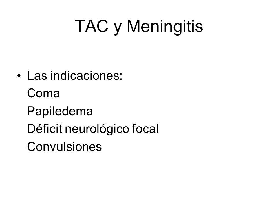 TAC y Meningitis Las indicaciones: Coma Papiledema Déficit neurológico focal Convulsiones
