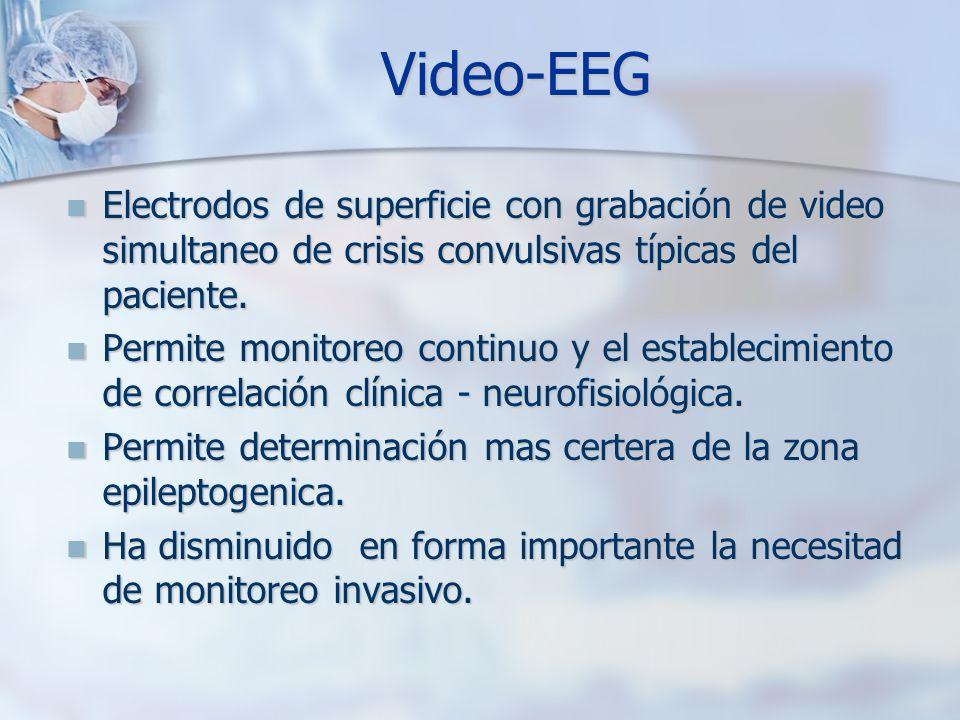 Video-EEG Electrodos de superficie con grabación de video simultaneo de crisis convulsivas típicas del paciente. Electrodos de superficie con grabació