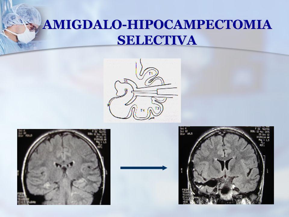 AMIGDALO-HIPOCAMPECTOMIA SELECTIVA