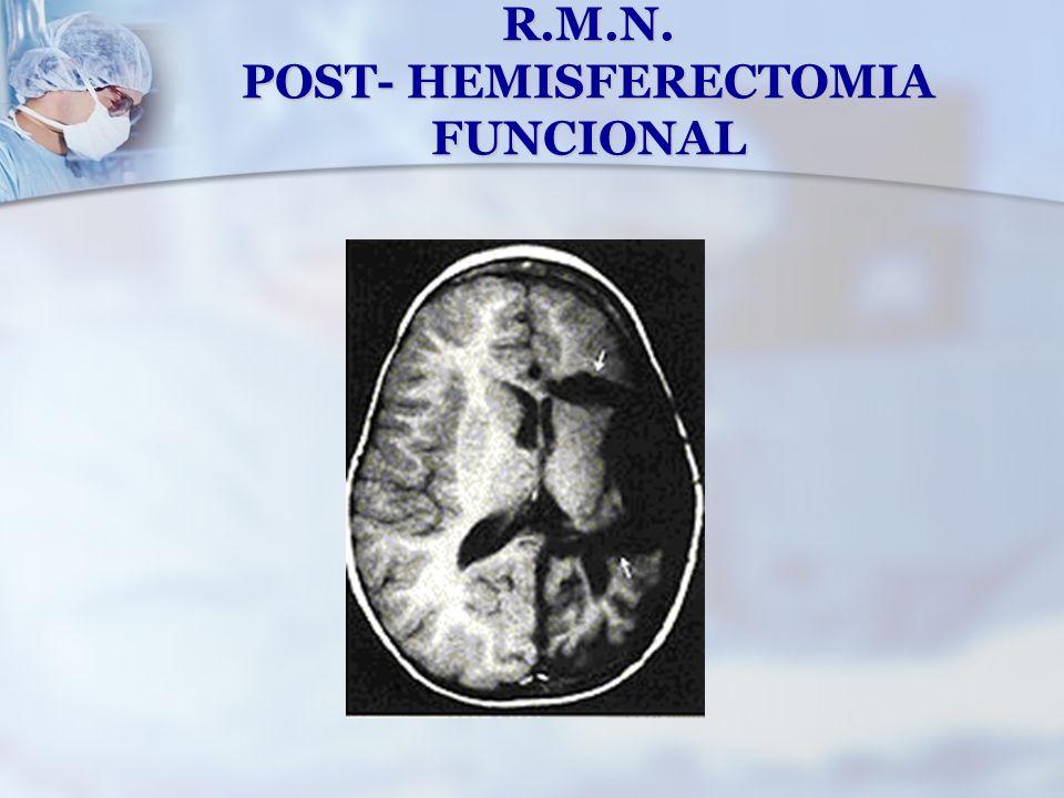 R.M.N. POST- HEMISFERECTOMIA FUNCIONAL