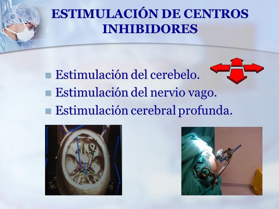ESTIMULACIÓN DE CENTROS INHIBIDORES Estimulación del cerebelo. Estimulación del cerebelo. Estimulación del nervio vago. Estimulación del nervio vago.