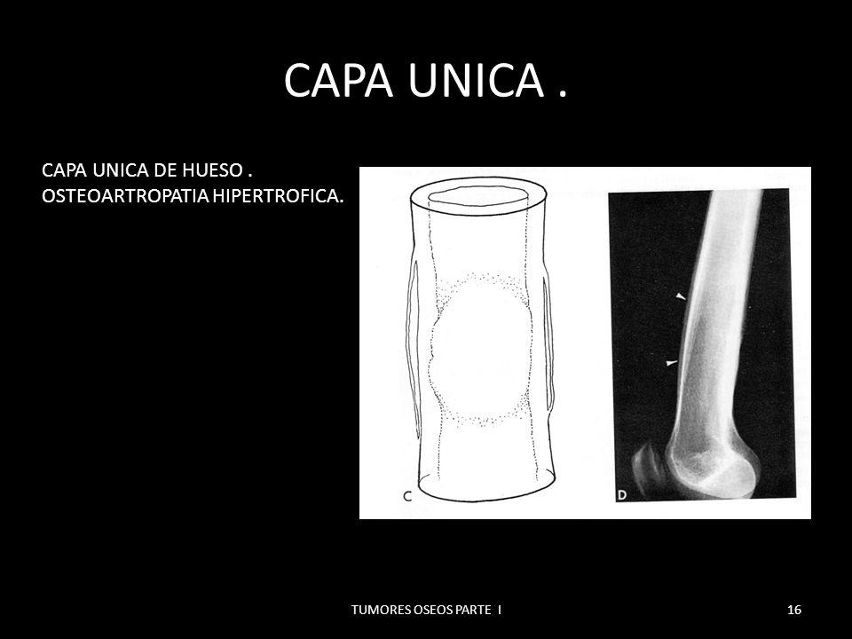 REACCION PERIOSTICA EN CAPAS.PLANOS CONCENTRICOS DE OSIFICACION POR FUERA DE LA CORTEZA.