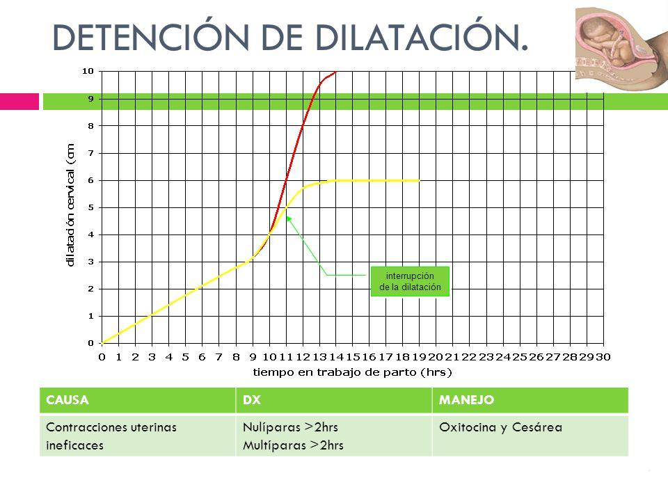interrupción de la dilatación interrupción de la dilatación DETENCIÓN DE DILATACIÓN.. CAUSADXMANEJO Contracciones uterinas ineficaces Nulíparas >2hrs