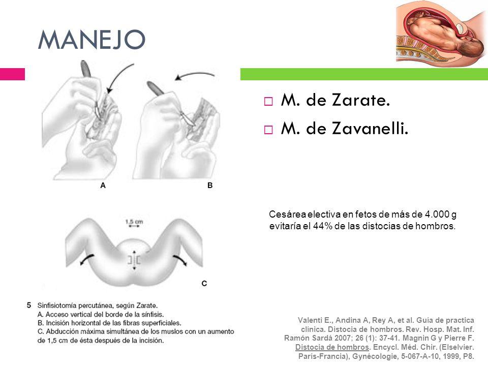 MANEJO M. de Zarate. M. de Zavanelli. Cesárea electiva en fetos de más de 4.000 g evitaría el 44% de las distocias de hombros. Valenti E., Andina A, R