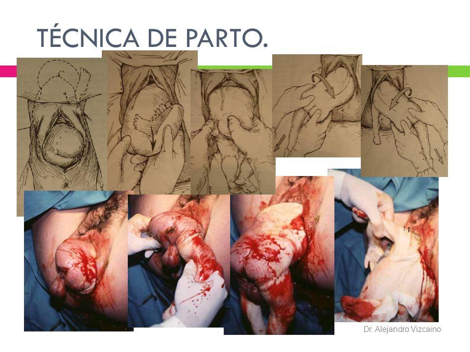 TÉCNICA DE PARTO. Dr. Alejandro Vizcaino