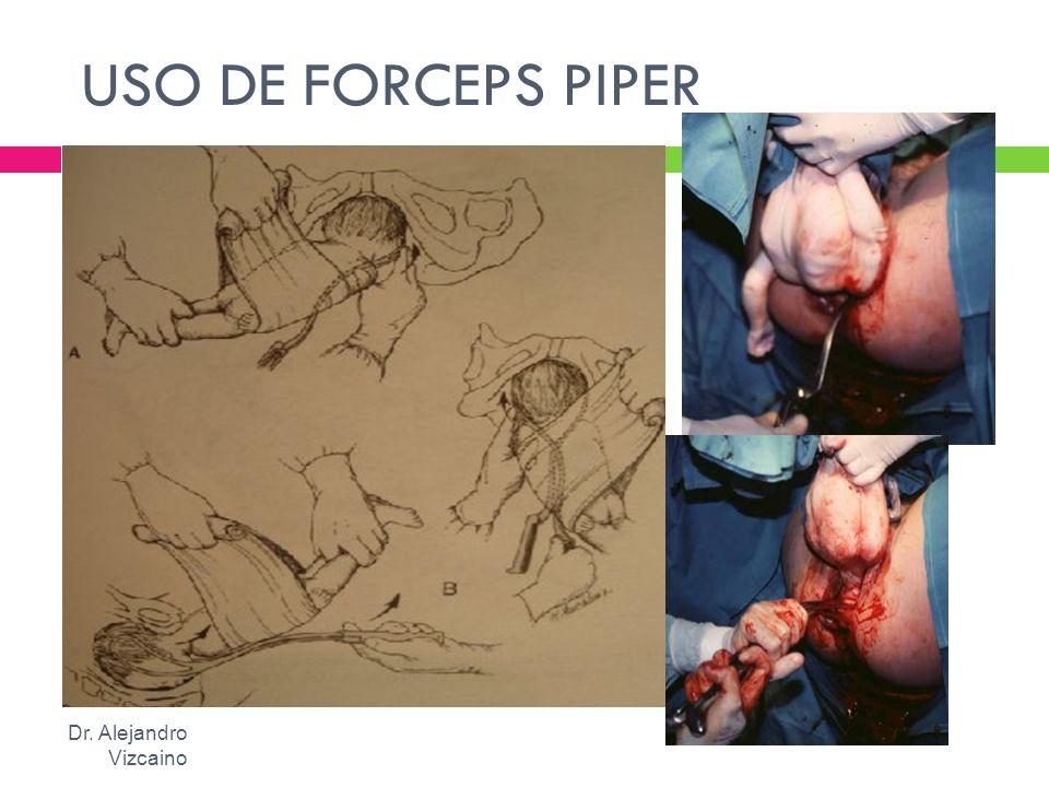 USO DE FORCEPS PIPER Dr. Alejandro Vizcaino