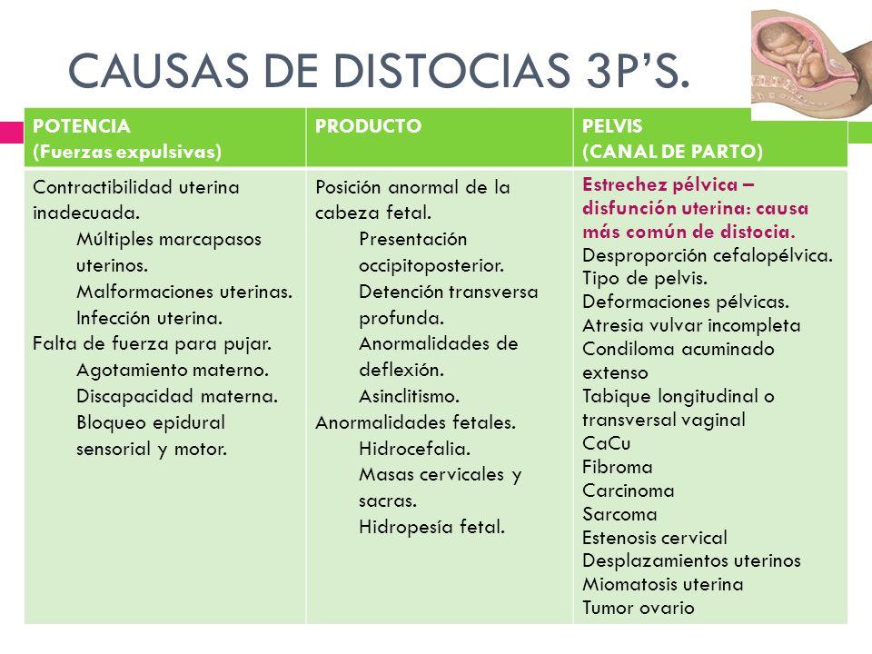 CAUSAS DE DISTOCIAS 3PS.. POTENCIA (Fuerzas expulsivas) PRODUCTOPELVIS (CANAL DE PARTO) Contractibilidad uterina inadecuada. Múltiples marcapasos uter