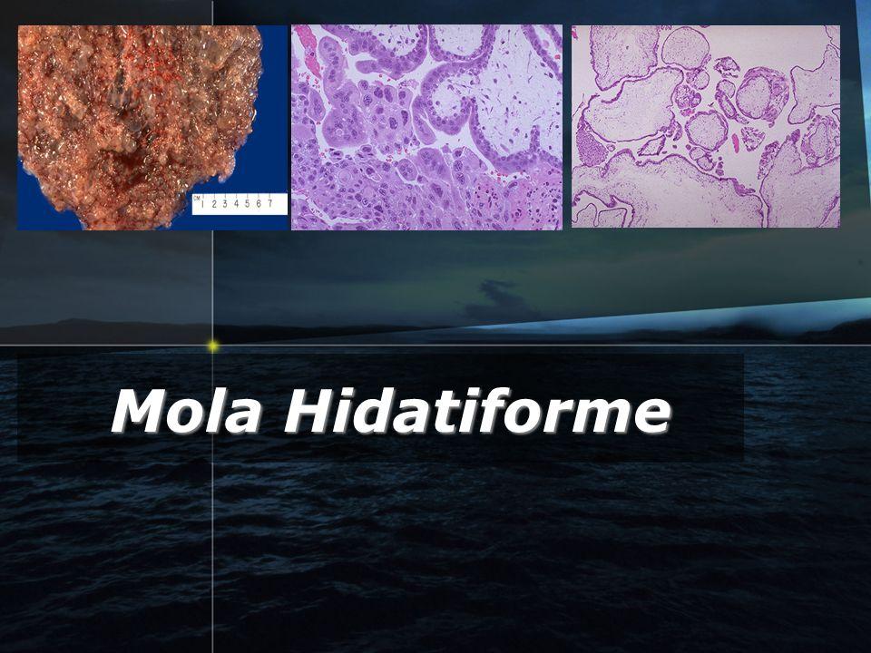 GTD6 Introduccion Introduccion Definicion:Definicion: proliferacion anormal de celulas trofoblasticas existe edema de estroma y vesiculas (forma de uva.) Classificacion :Classificacion :completa parcial.