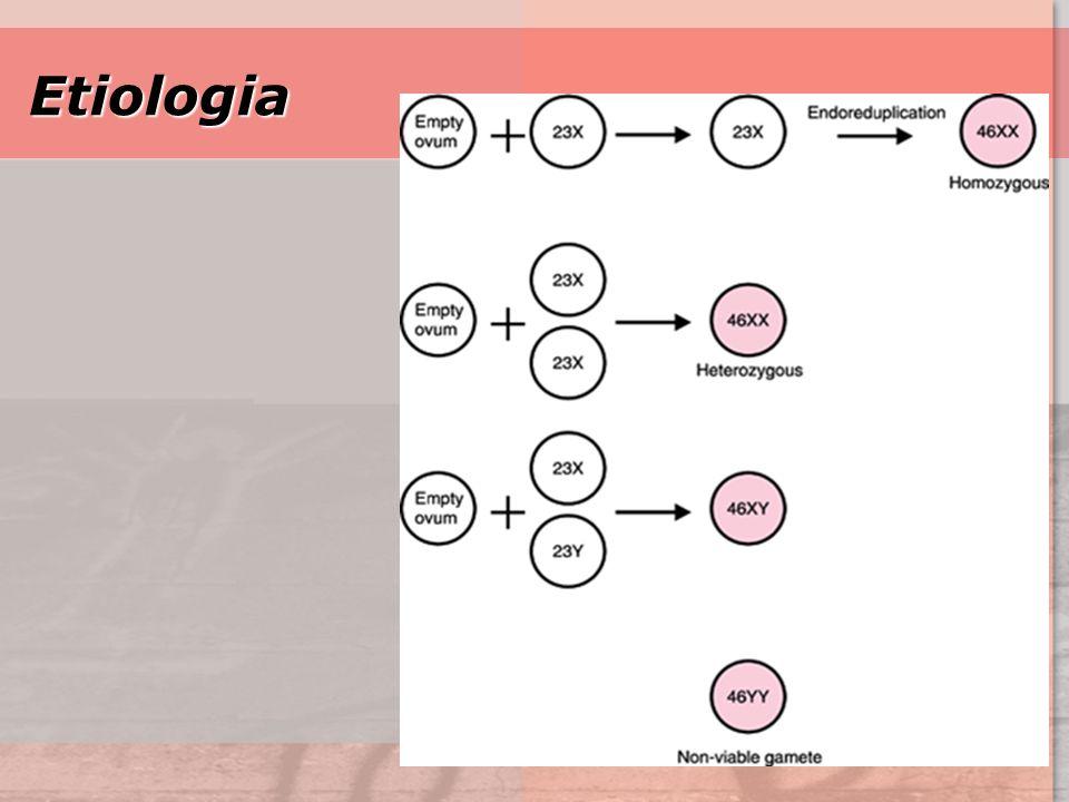 GTD9 Etiologia Etiologia MOLA PARCIAL: –La mortalidad de la mola parcial es menor que la completa –no asocia a edad – Factores Geneticos: –cariotipo 90% es triploide.