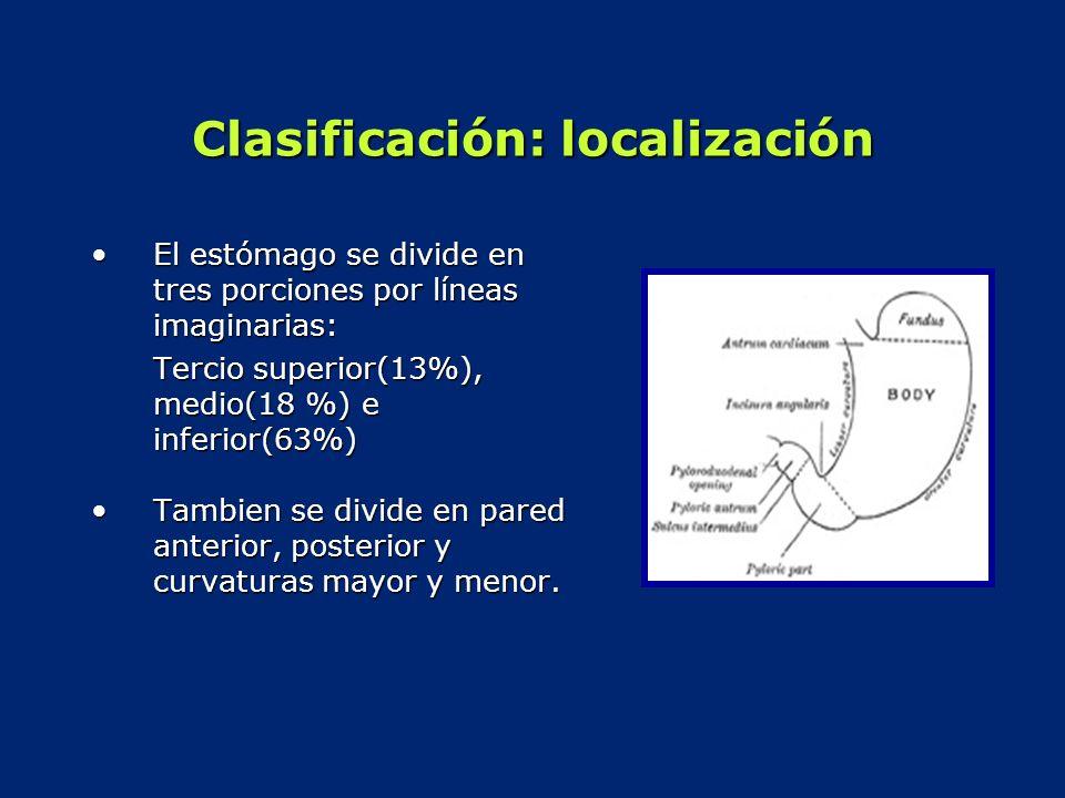 Clasificación: localización El estómago se divide en tres porciones por líneas imaginarias:El estómago se divide en tres porciones por líneas imaginar