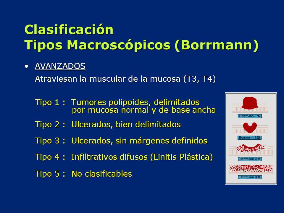 Clasificación Tipos Macroscópicos (Borrmann) AVANZADOSAVANZADOS Atraviesan la muscular de la mucosa (T3, T4) Tipo 1 : Tumores polipoides, delimitados