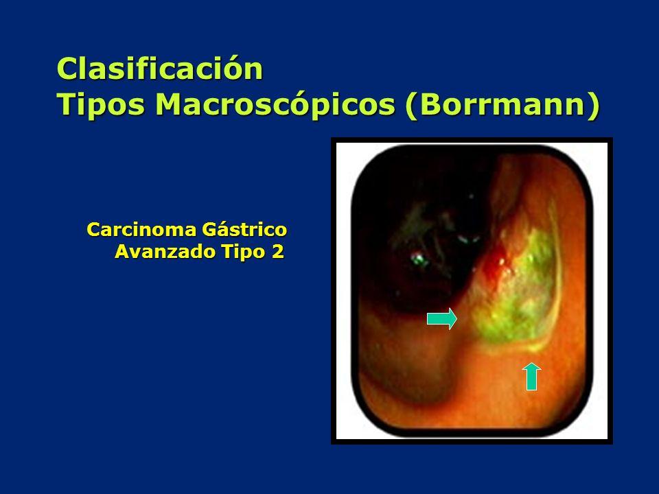 Clasificación Tipos Macroscópicos (Borrmann) Carcinoma Gástrico Avanzado Tipo 2