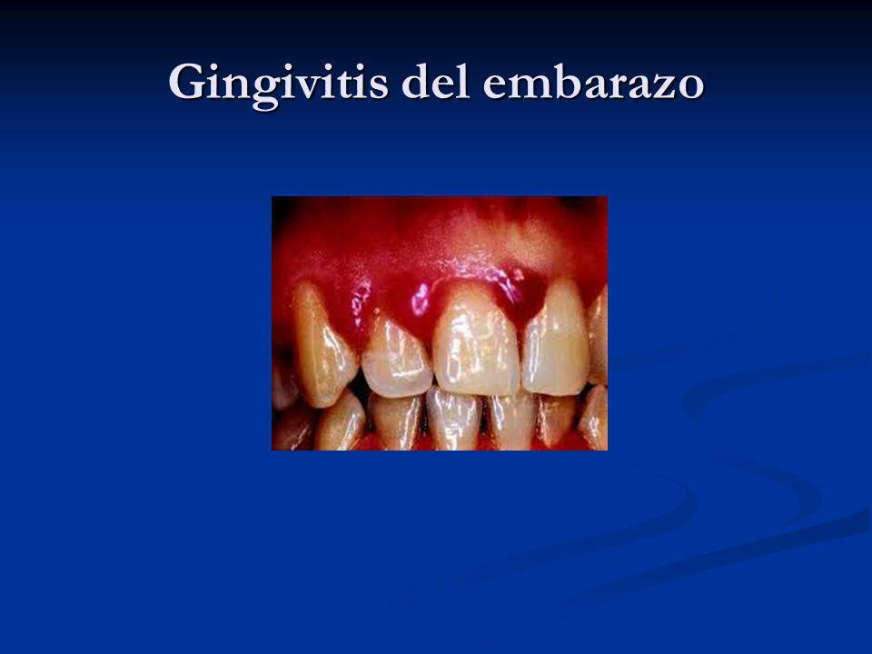 Gingivitis del embarazo