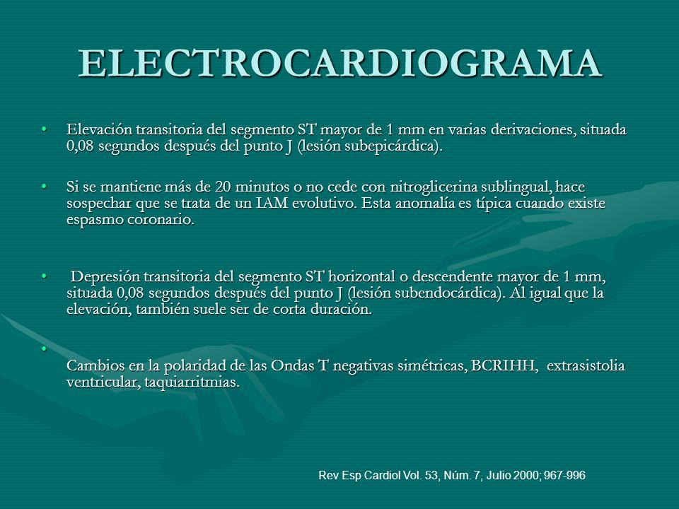 ELECTROCARDIOGRAMA Elevación transitoria del segmento ST mayor de 1 mm en varias derivaciones, situada 0,08 segundos después del punto J (lesión subep