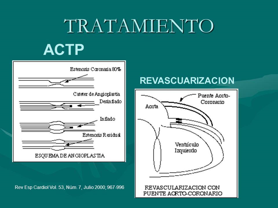 TRATAMIENTO ACTP REVASCUARIZACION Rev Esp Cardiol Vol. 53, Núm. 7, Julio 2000; 967-996