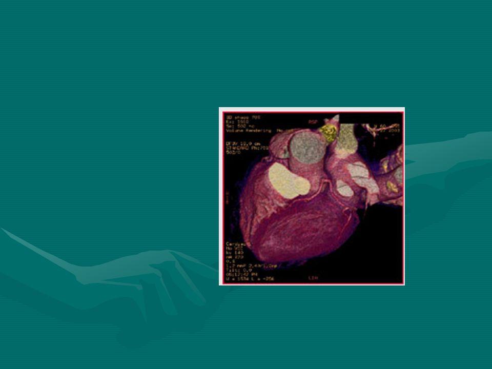 Sistemática de pacientes con ACE Identificar y tratar factores desencadenantesIdentificar y tratar factores desencadenantes ( anemia, HAS, tirotoxicosis,arritmia, ICC, valvular) ( anemia, HAS, tirotoxicosis,arritmia, ICC, valvular) Modificar factores de riesgo, ejercico, habitos dietéticos.Modificar factores de riesgo, ejercico, habitos dietéticos.