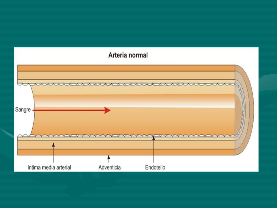 ELECTROCARDIOGRAMA Elevación transitoria del segmento ST mayor de 1 mm en varias derivaciones, situada 0,08 segundos después del punto J (lesión subepicárdica).Elevación transitoria del segmento ST mayor de 1 mm en varias derivaciones, situada 0,08 segundos después del punto J (lesión subepicárdica).