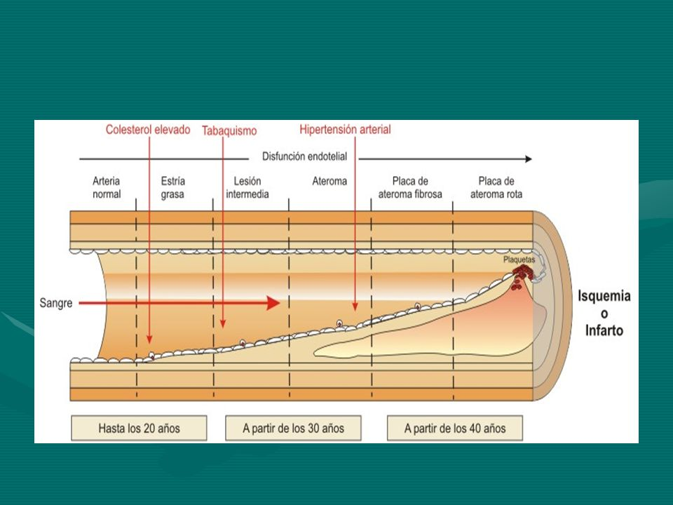 FACTORES DE RIESGO Genero masculinoGenero masculino TABAQUISMOTABAQUISMO Presentar niveles de colesterol elevado (en particular, el colesterol LDL elevado y el colesterol HDL bajo)Presentar niveles de colesterol elevado (en particular, el colesterol LDL elevado y el colesterol HDL bajo)colesterol elevado colesterol LDLHDLcolesterol elevado colesterol LDLHDL HASHAS DM2DM2DM2 Antecedentes familiares de enfermedad cardiaca coronaria antes de los 55 años de edadAntecedentes familiares de enfermedad cardiaca coronaria antes de los 55 años de edad SedentarismoSedentarismo ObesidadObesidadObesidad Rev Esp Cardiol Vol.